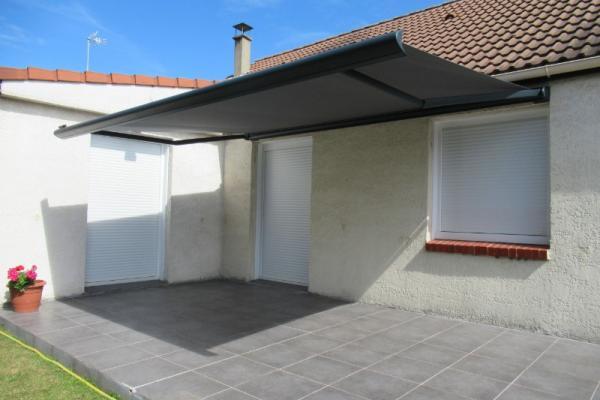 Store de terrasse - Teteghem